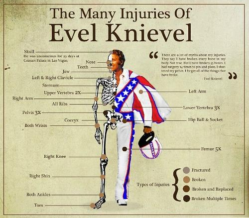 The many injuries of daredevil Evel Knievel